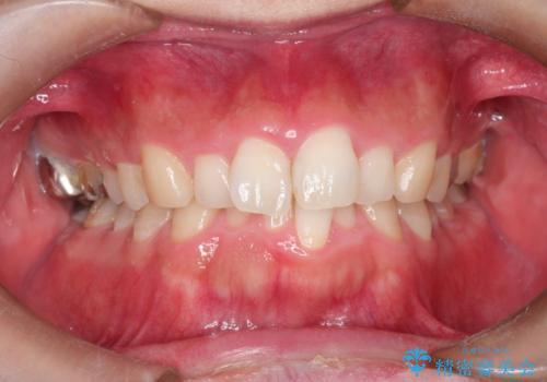 全体のガタガタをインビザラインできれいな歯並びへの症例 治療前