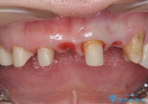 前歯のブリッジの下が虫歯 ブリッジのやりかえの治療中