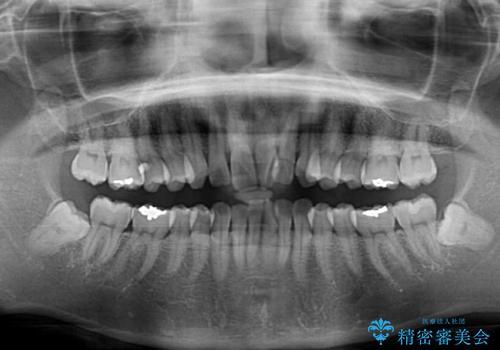 短期間で仕上げたい ワイヤーでの非抜歯矯正の治療前