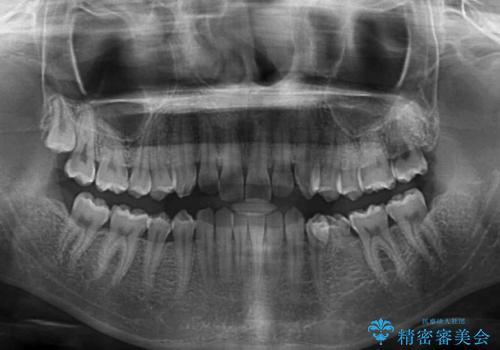 乳歯を抜いてインプラントに 咬み合わせ改善のインビザライン矯正の治療前