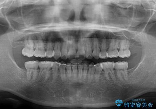 著しい叢生と顎骨のズレ ワイヤー装置による抜歯矯正の治療後