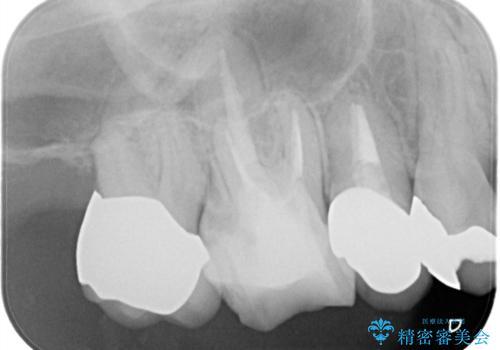 メタルボンドクラウンによる虫歯の治療の治療後
