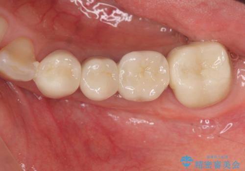 [ 2歯連続欠損 ] インプラントによる機能回復 の治療後