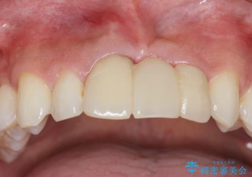 [ 審美歯科 ]前歯のブリッジをやりかえたいの症例 治療前