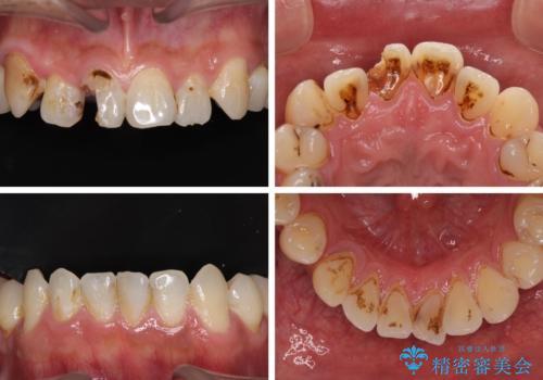 とにかく作り物のような真っ白な歯にしたい フルジルコニアクラウンによる補綴治療の治療前