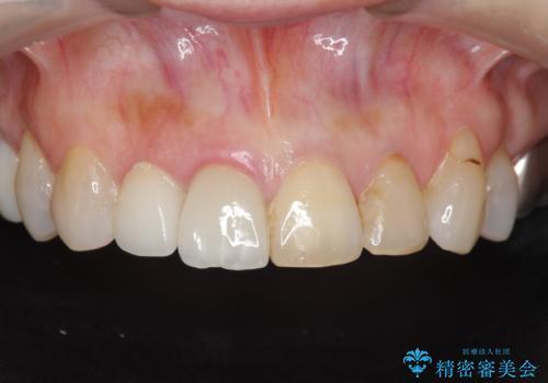 [ 前歯ジルコニアブリッジ ]  前歯の突き上げによる歯牙破折の症例 治療前