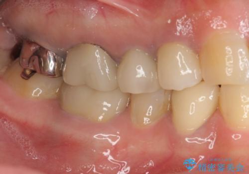 [ 根管治療・セラミッククラウン ]  噛むと痛い歯の治療の治療後