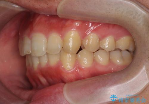 [ インビザライン ] マウスピース矯正で治す出っ歯の治療の治療後