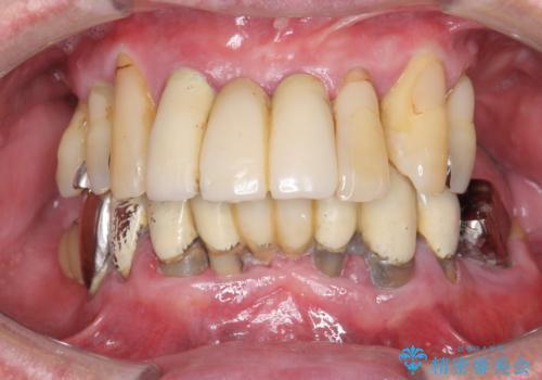 [ 重度歯周病 ] インプラント・義歯による咬合再構築の症例 治療前