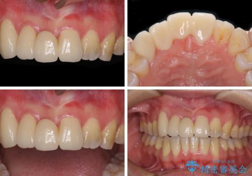 転んで前歯が欠けた 折れた前歯をきっかけに矯正治療で歯列をきれいに整えるの治療後