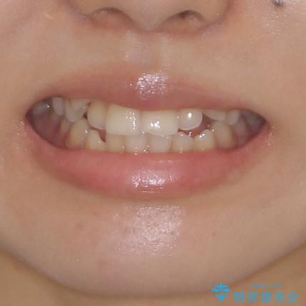 目立ちにくい抜歯矯正 ハーフリンガルの治療前(顔貌)