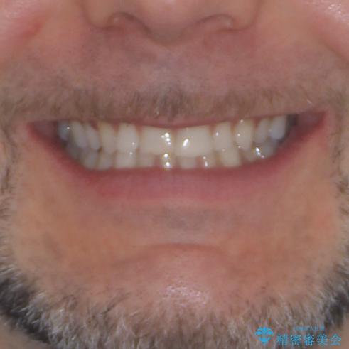 抜歯矯正の後戻りが気になる インビザライン・ライトによる矯正治療の治療前(顔貌)