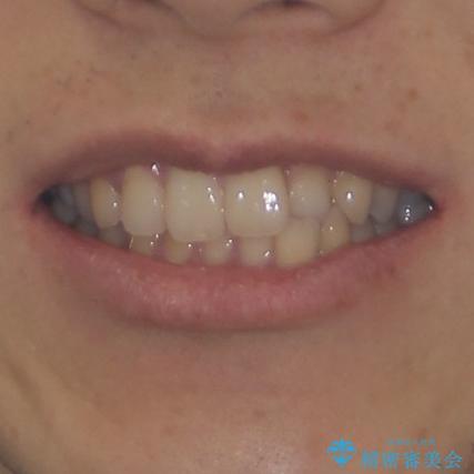 前歯のクロスバイトと抜歯が必要な奥歯の虫歯 インビザラインとインプラント治療の治療前(顔貌)