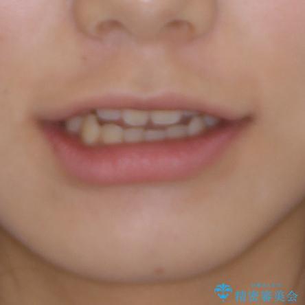 話しにくいオープンバイト ワイヤー装置による抜歯矯正治療の治療前(顔貌)