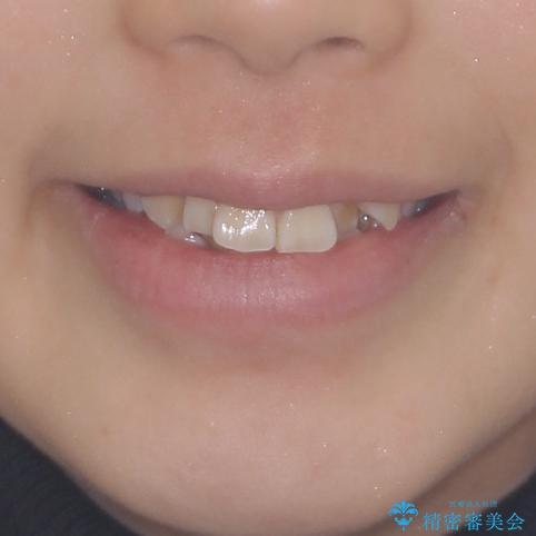前歯が磨きにくい 目立たないワイヤー装置による矯正治療の治療前(顔貌)