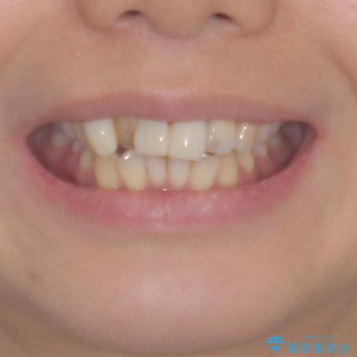 転んで前歯が欠けた 折れた前歯をきっかけに矯正治療で歯列をきれいに整えるの治療前(顔貌)