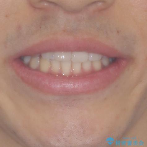 インビザライン・ライトによる矯正治療の後戻り改善の治療前(顔貌)
