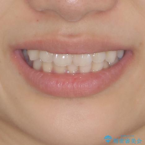 インビザラインを用いた非抜歯矯正の治療前(顔貌)