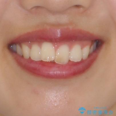 就職前にきれいな歯並びにしたい 大学生のインビザライン矯正の治療前(顔貌)