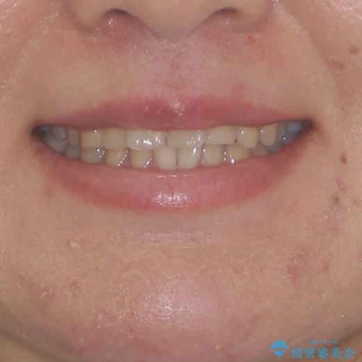顎が痛くなる咬み合わせが気になる 想定していなかった矯正治療を行うことにの治療前(顔貌)