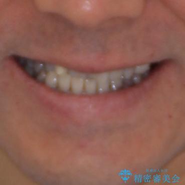 下の歯が前に出てしまう咬み合わせを治したい インビザラインによる矯正治療の治療前(顔貌)
