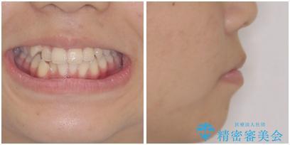 気がつくと口が開いてしまう 閉じにくい口元改善の抜歯矯正の治療前(顔貌)