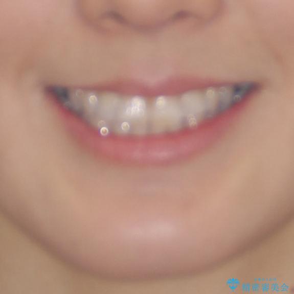 急速拡大装置で奥歯の咬み合わせを改善 インビザラインによる矯正治療の治療前(顔貌)
