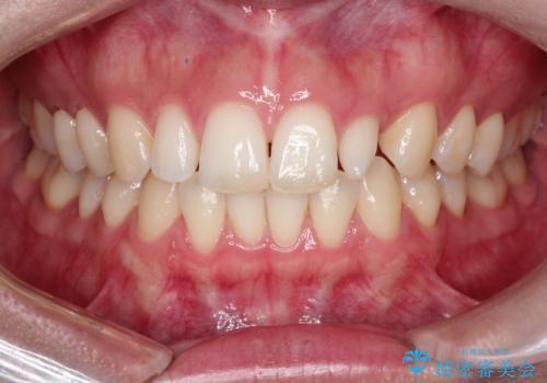 【矮小歯】オールセラミッククラウンの治療前