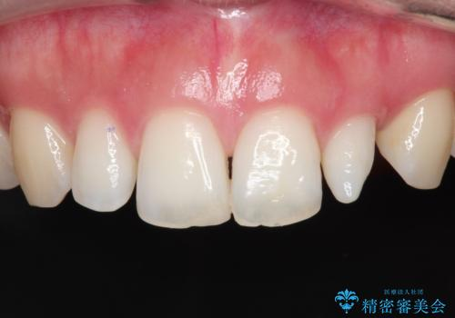 【矮小歯】オールセラミッククラウンの症例 治療前