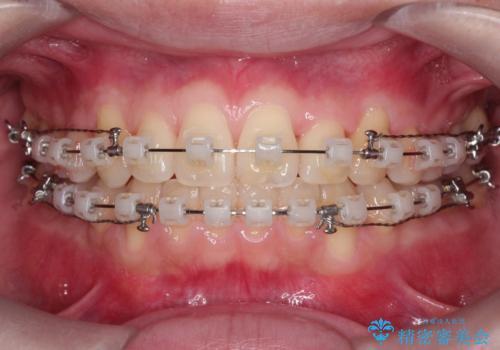 【クリア装置】前歯の凸凹を綺麗にしたいの治療中