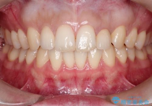 【矮小歯】オールセラミッククラウンの治療後