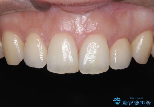 【矮小歯】オールセラミッククラウンの症例 治療後