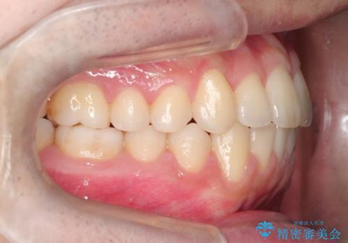 【クリア装置】前歯の凸凹を綺麗にしたいの治療後