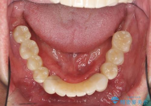 [ 重度歯周病 ] インプラント・義歯による咬合再構築の治療後
