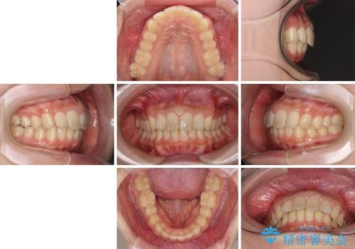 就職前にきれいな歯並びにしたい 大学生のインビザライン矯正の治療後