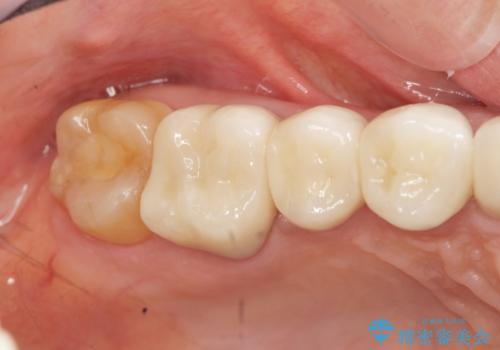 [ セラミック治療 ]歯の色が気になる 虫歯も治したいの治療後