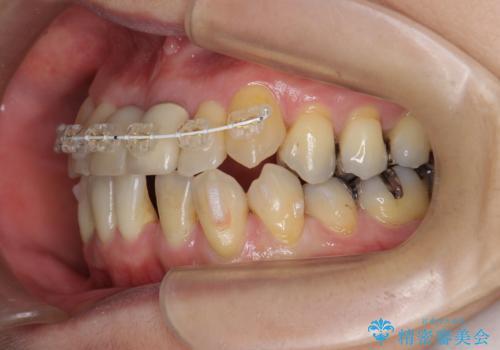 [ 矯正と補綴、総合歯科治療 ]  クロスバイトを避ける前歯部審美ブリッジの治療中