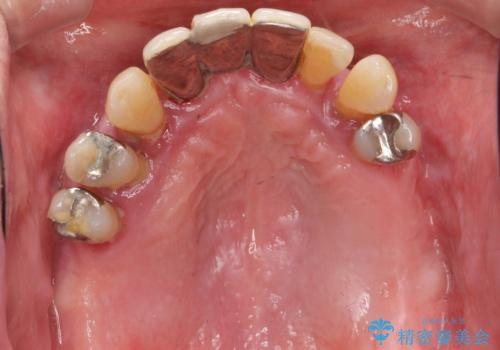[ 重度歯周病 ] インプラント・義歯による咬合再構築の治療前