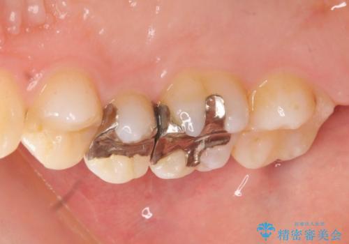 銀歯を白くしたい 隙間がしみるの症例 治療前