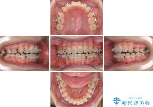 話しにくいオープンバイト ワイヤー装置による抜歯矯正治療の治療中