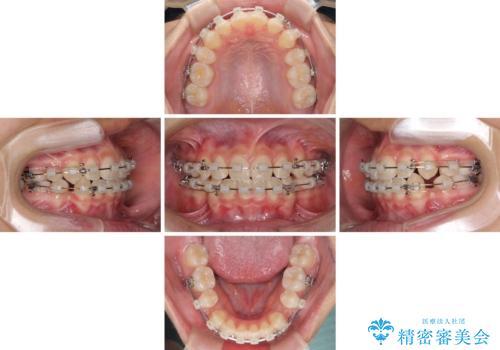気がつくと口が開いてしまう 閉じにくい口元改善の抜歯矯正の治療中
