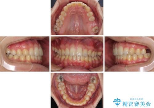 前歯のクロスバイトと抜歯が必要な奥歯の虫歯 インビザラインとインプラント治療の治療中