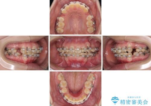 前歯が磨きにくい 目立たないワイヤー装置による矯正治療の治療中