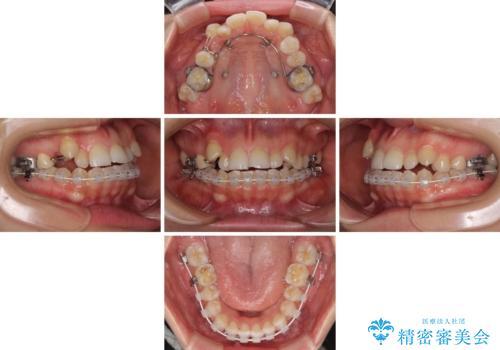 目立ちにくい抜歯矯正 ハーフリンガルの治療中