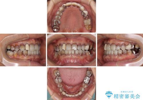 下の歯が前に出てしまう咬み合わせを治したい インビザラインによる矯正治療の治療中