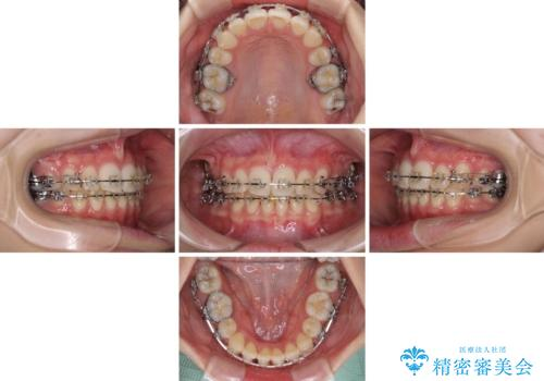 治療途中で転院 抜歯矯正の仕上げ治療の治療中