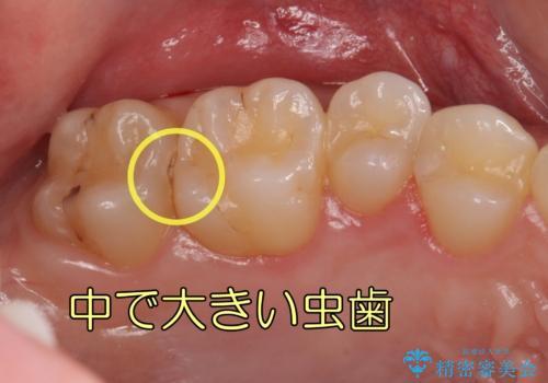 奥歯の虫歯 歯の間を広げてセラミックでしっかり治療の症例 治療前