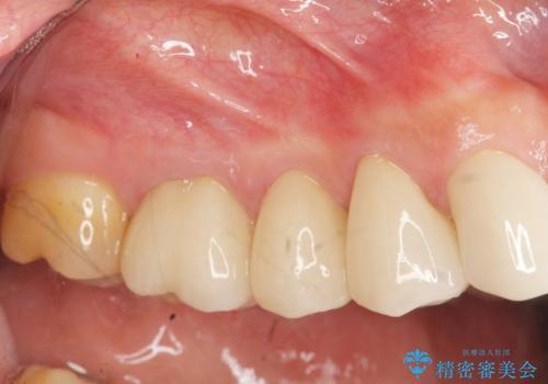 [ セラミック治療 ]歯の色が気になる 虫歯も治したいの症例 治療後