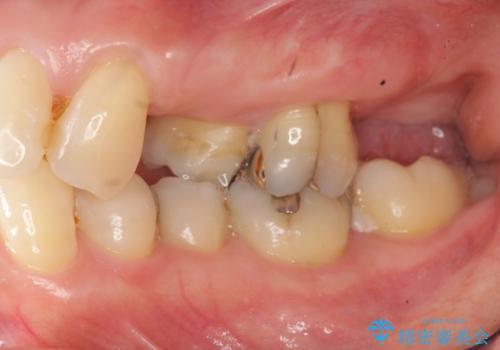小矯正を伴う臼歯部ブリッジ治療の治療前