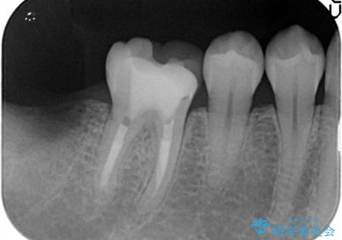 【オールセラミック】奥歯が痛い。根管治療〜被せ物治療の治療前